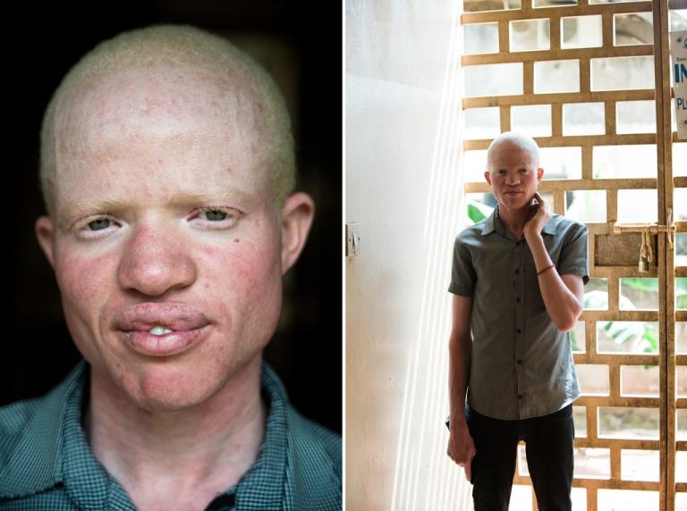 albinos_09