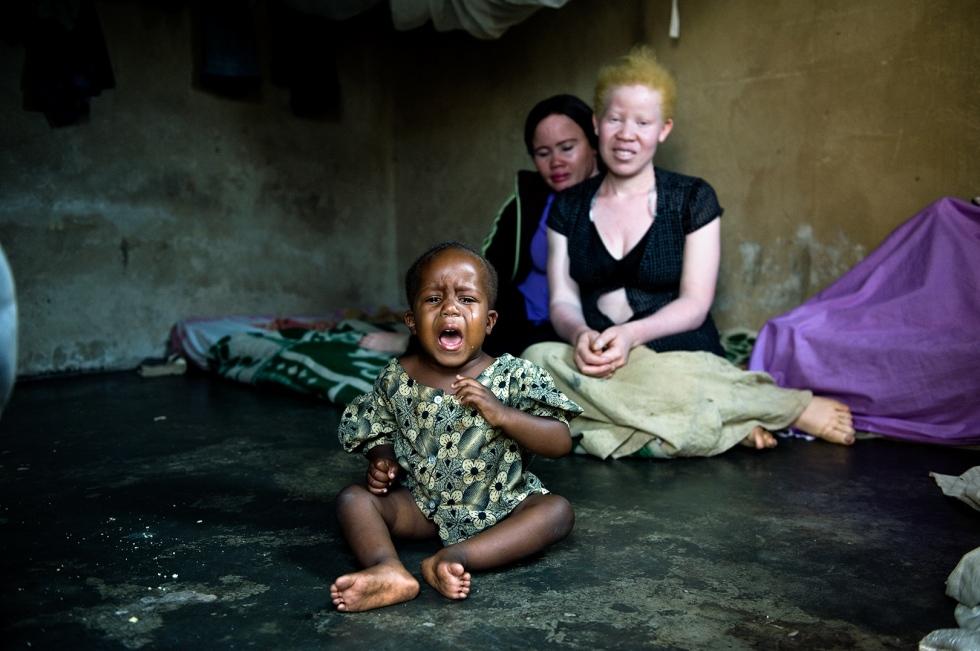 albinos_titel